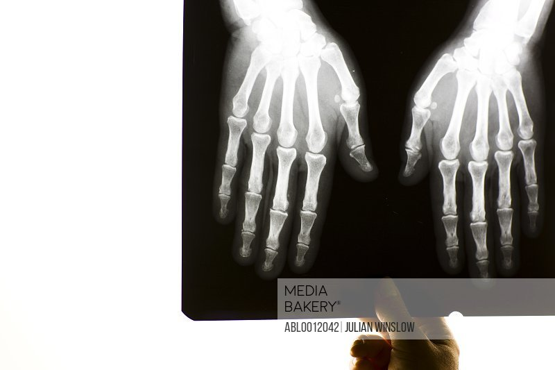 Hand of healthcare professional holding x-ray of a pair hands