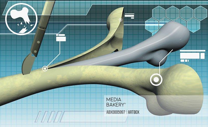 Human bone being cut with a scalpel