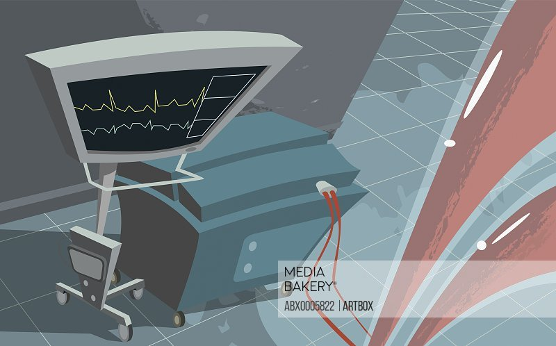 High angle view of a heart monitor
