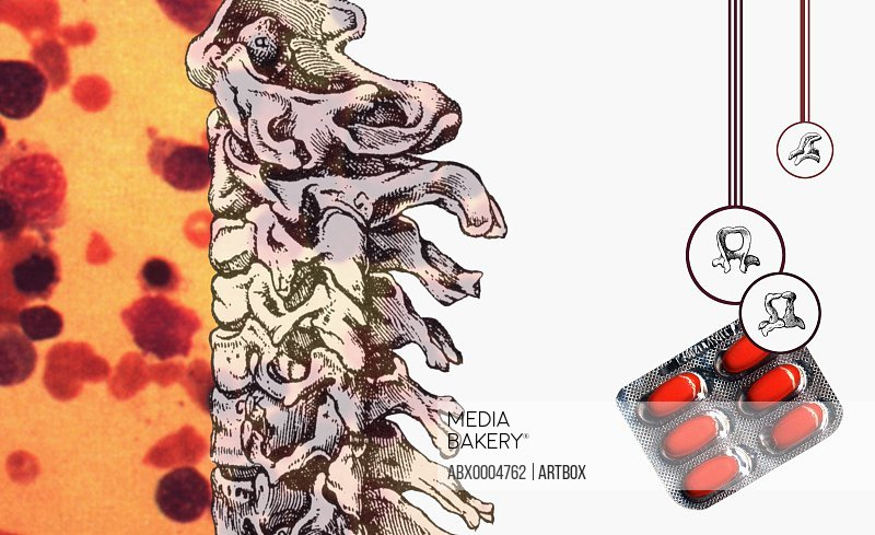 The human spine and a blister pack