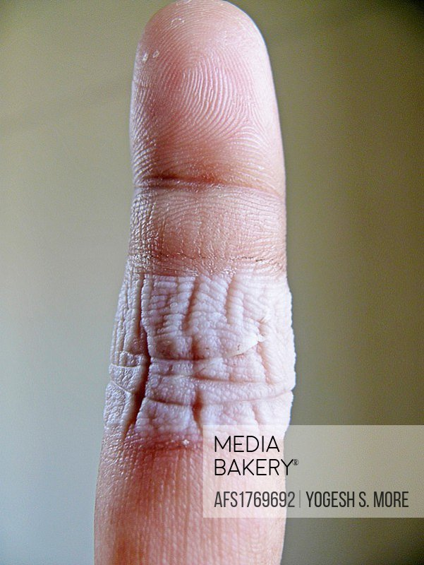 Human finger after removing Band-Aid