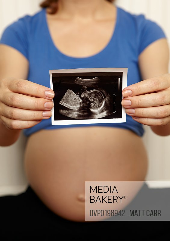Pregnant woman holding sonogram
