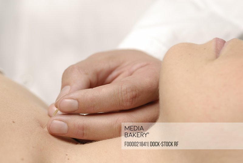 Photo by F1online Images - Acupuncture on the leg - BI 36 , UB 36 , V 36