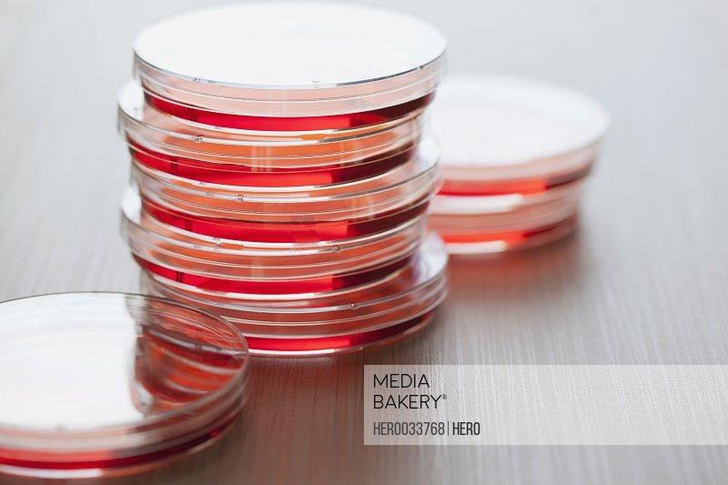petri dish with inoculating loop