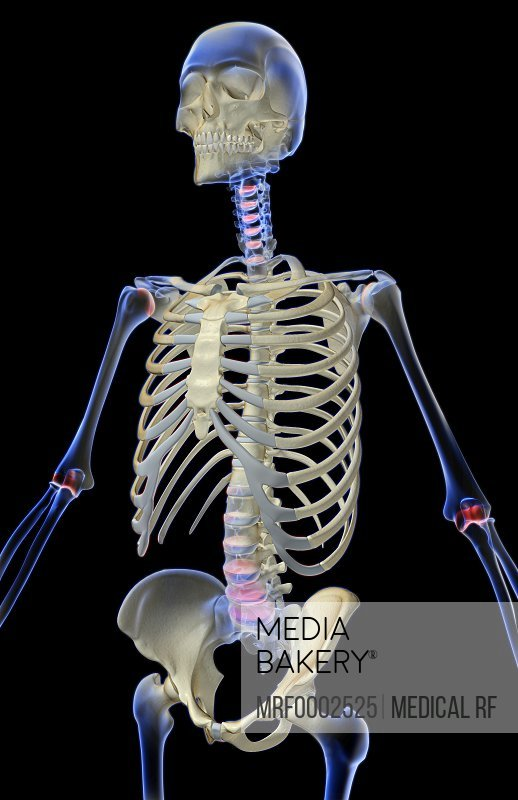 Mediabakery - Photo by Medical RF - A posterolateral view