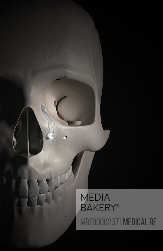 Mediabakery - Photo by Medical RF - An anterolateral view
