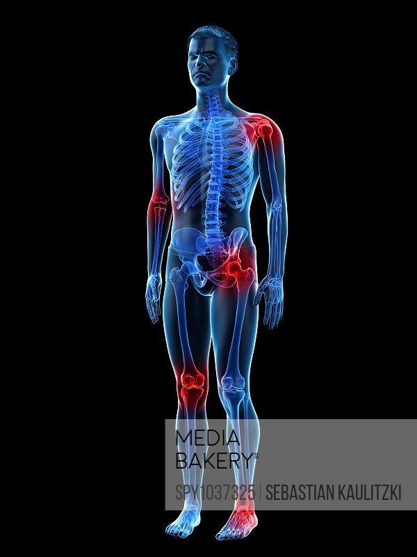 Joint pain, conceptual illustration