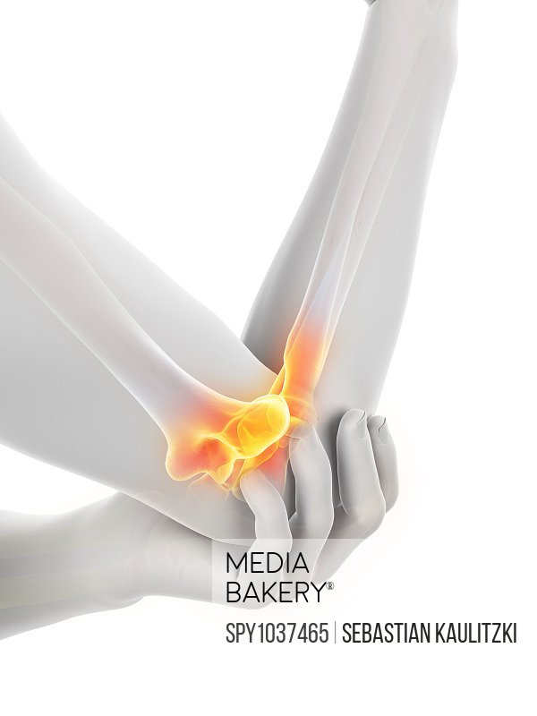 Elbow pain, conceptual illustration