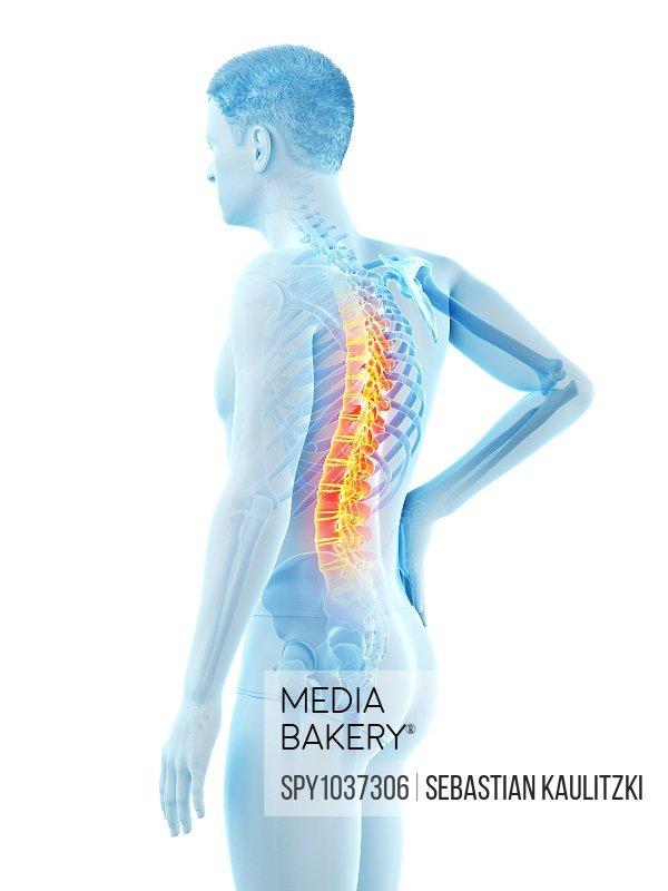Back pain, conceptual illustration