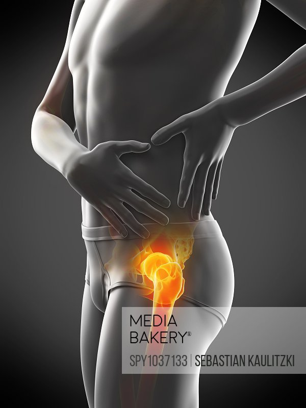 Hip pain, conceptual illustration