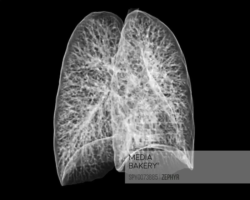 Mediabakery Photo By Science Photo Library Healthy Lungs Ct Scan