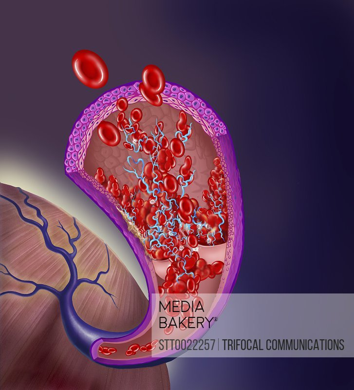 Thrombus forming on valve within vein