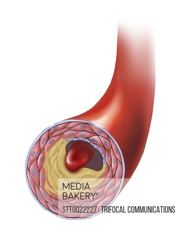 Normal artery compared to plaque and thrombus formation in artery