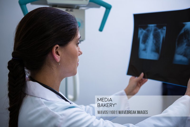 Female doctor examining x-ray report at hospital